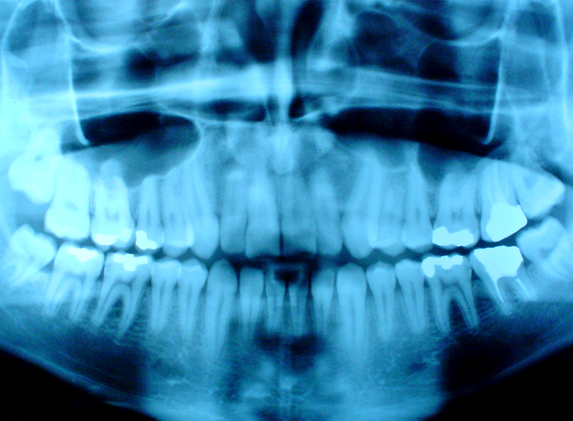 Рентген зубов 23